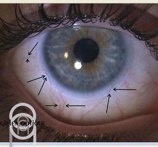 Gielen Optique -  Lentilles